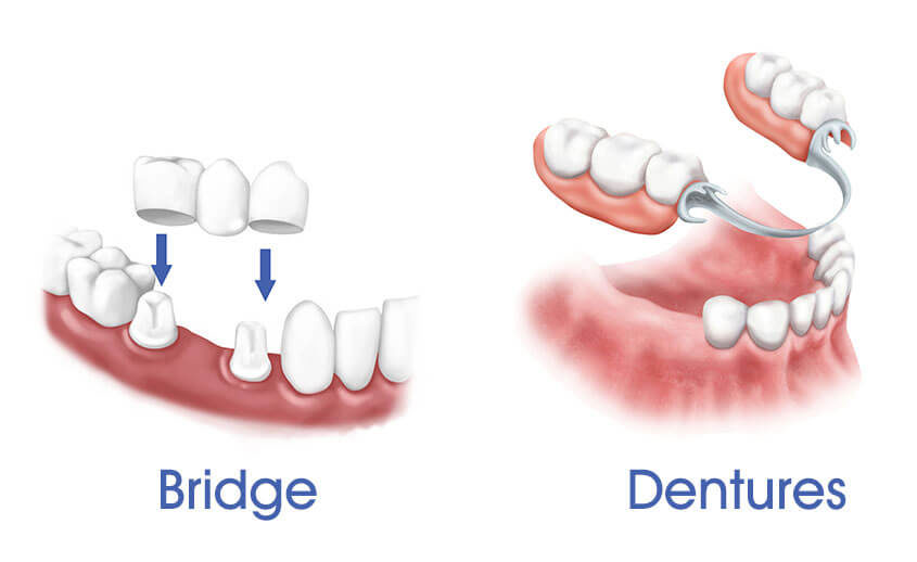 پروتز دندان ثابت پل