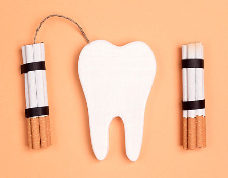 تاثیر سیگار بر کاشت دندان