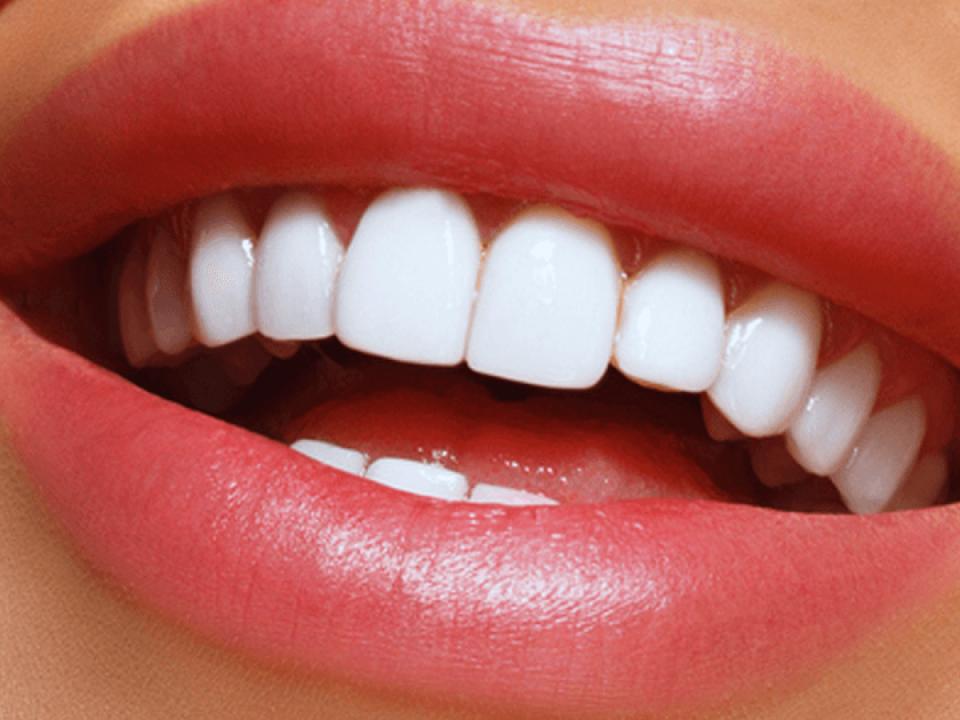 مقایسه قیمت لمینت دندان