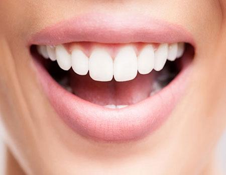بهترین مارک لمینت دندان