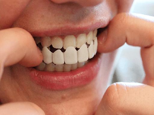 انواع پروتزهای دندان کدامند