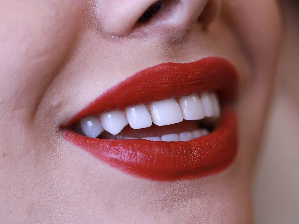 تأثیر لمینت دندان بر زیبایی خنده چیست
