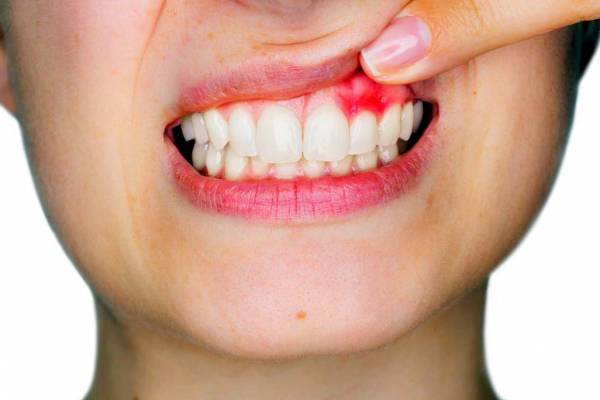 آبسه دندان در مستر ایمپلنت