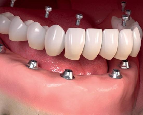 آشنایی با کاشت ایمپلنت در خواب و سدیشن دندانپزشکی