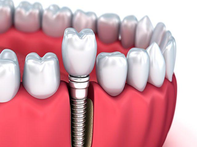 صفر تا صد مراحل ایمپلنت دندان