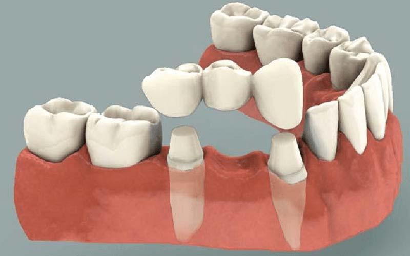 آشنایی با روش های کاشت دندان بدون ایمپلنت