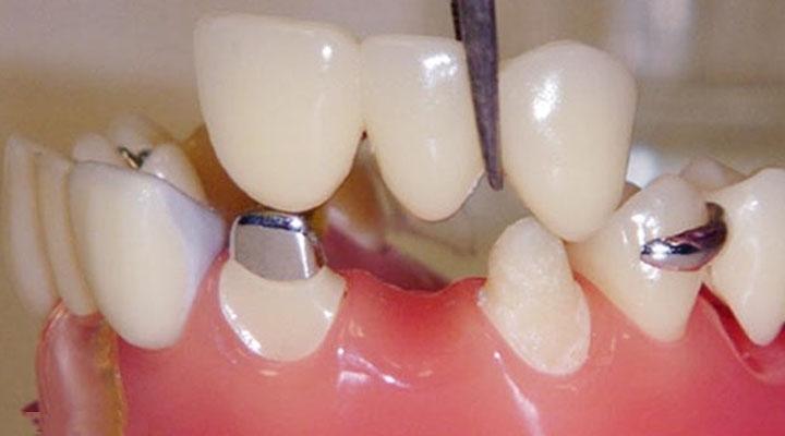 معایب روش بریج دندان
