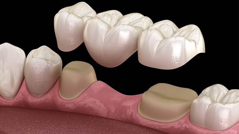 پل دندان چیست و چگونه جایگذاری می شود؟