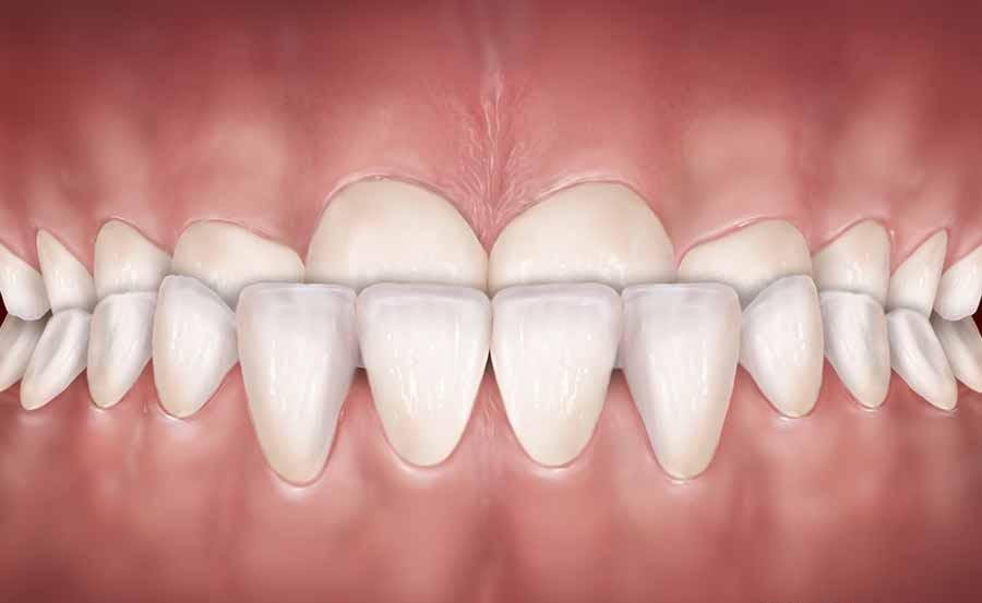 آندربایت دندان و دلایل آن چیست